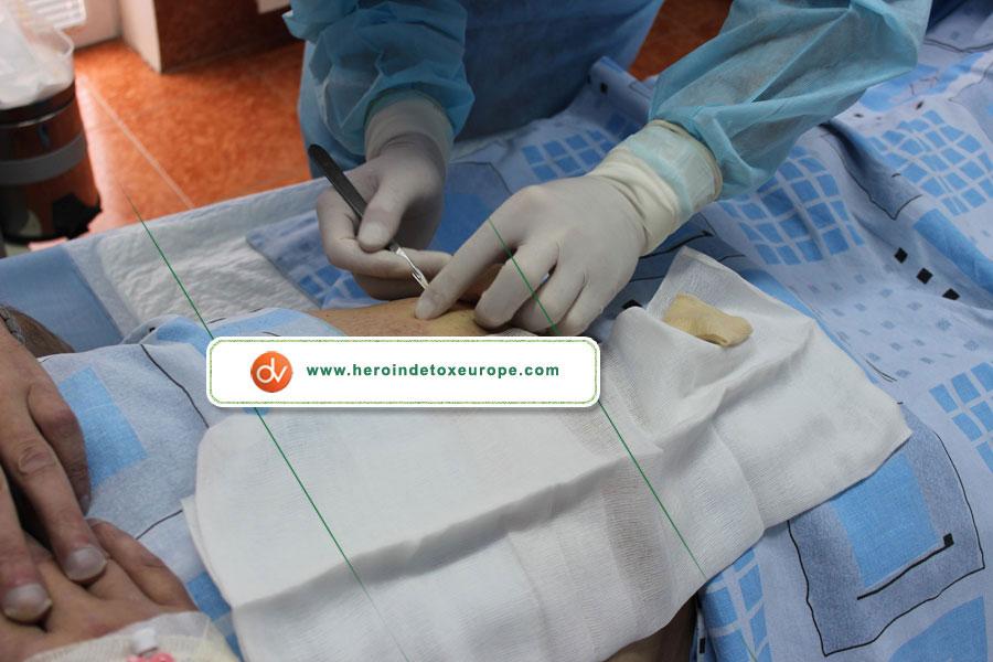naltrekson implantı